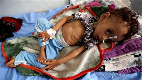 UN delivered food for 9.5mln in Yemen last month: official